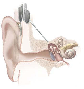 HDA2014_Nadbrahm2_Cochlear_implant.jpg